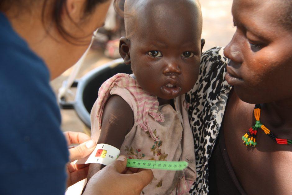 One-year-old Achuol has her health checked in Bahr el Ghazal, South Sudan. ©Medair/Diana Gorter